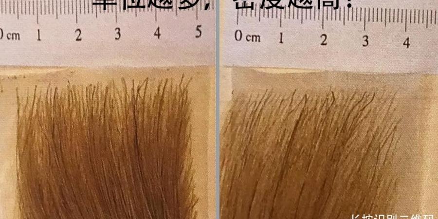 植发手术中移植的单位越多,效果就越好吗?